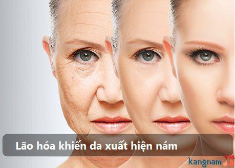 nguyên nhân nám da mặt