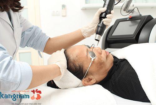 Công nghệ Laser Picosure trị tàn nhang
