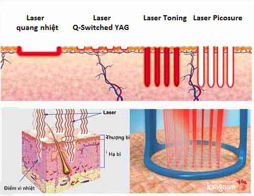 trị tàn nhang bằng laser bao nhiêu tiền