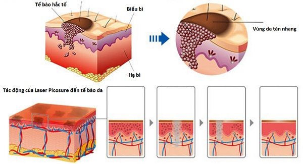 Laser Picosure trị tàn nhang như thế nào?