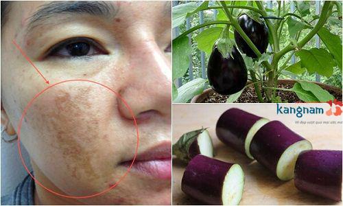 chữa nám da từ thiên nhiên