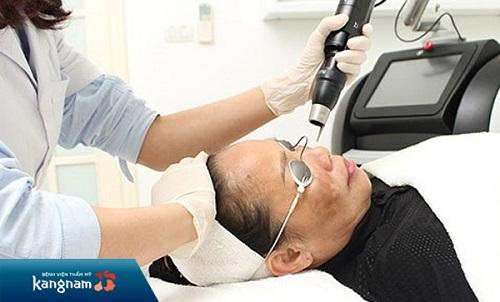 giá điều trị nám bằng laser