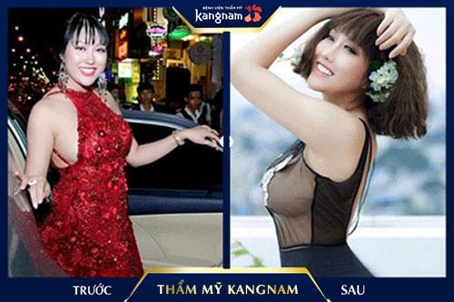 bảng giá thẩm mỹ viện kangnam